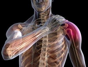 запалення плечового суглоба, лікування