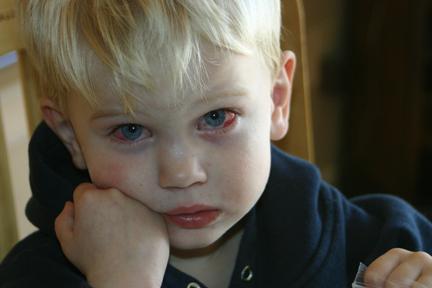 Що робити, якщо гноїться око у новонародженого