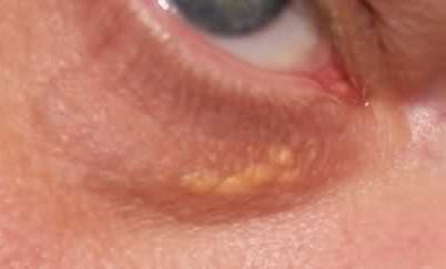 Що означають білі крапки під очима