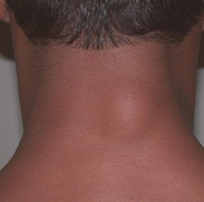 Що таке ліпома? Загальна характеристика і лікування