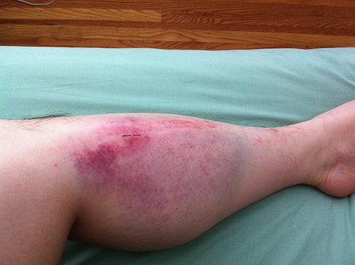 Гематома на нозі, лікування