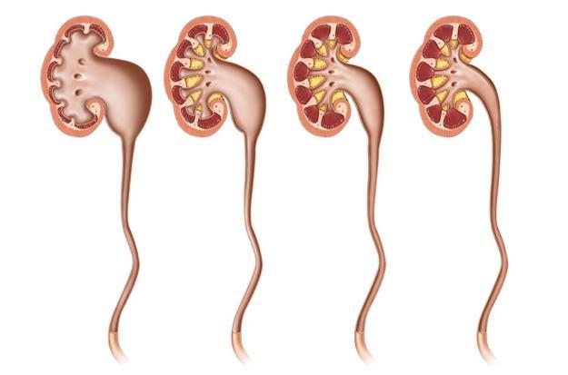 Гідронефроз лівої нирки: етіологія і ознаки