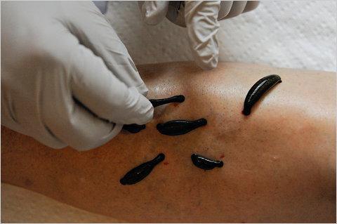 Гірудотерапія - наскільки ефективно лікування п`явками варикозу