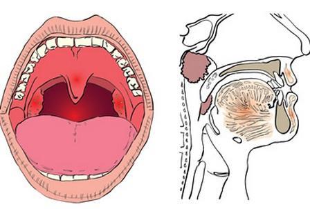 Хронічний тонзиліт: збільшені мигдалини у дитини
