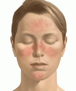 Як прибрати почервоніння на обличчі