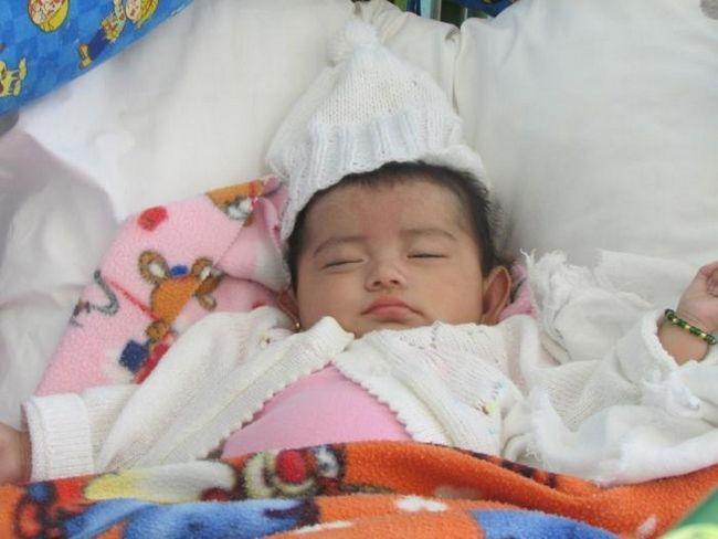 Яким має бути лікування пітниці у дитини і як не захворіти цим шкірним недугою