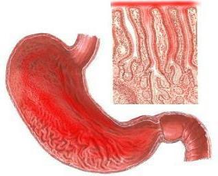 Катаральний гастрит: причини виникнення, симптоми і лікування захворювання