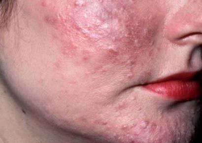 Кліщ під шкірою: ознаки його появи і методи лікування