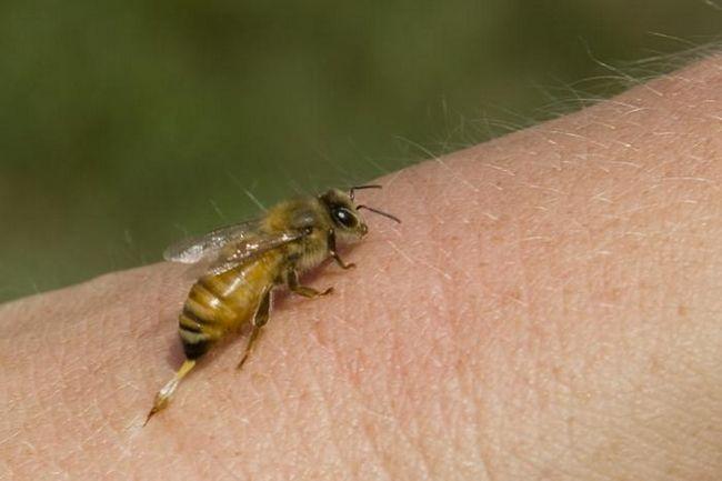 Консультація фахівця: що робити, якщо вкусила бджола