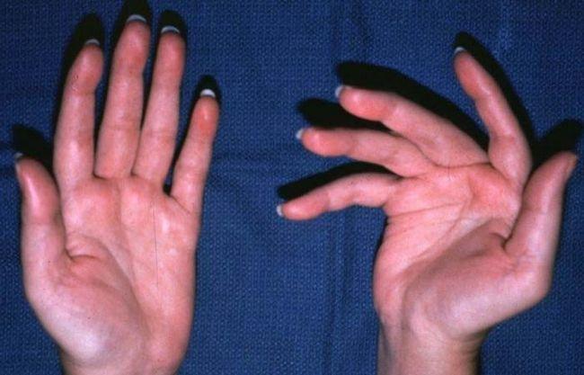 Лікування артриту пальців рук