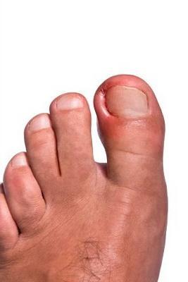 Лікування панариция на нозі - як можна зробити це без операції