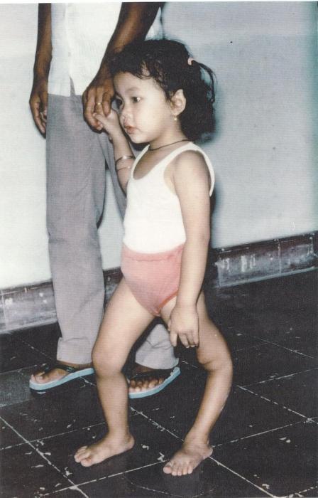 Поліомієліт у дітей. Як протікає захворювання