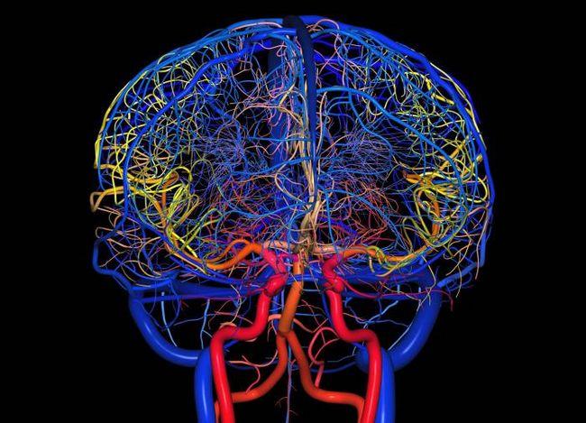 Препарати для судин головного мозку