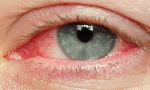 Причина червоних очей. Чи так все нешкідливо?