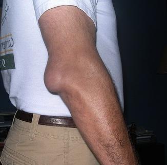 Причини і симптоми бурситу