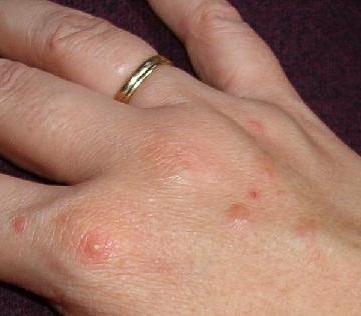 Прищики на руках - причини появи і лікування