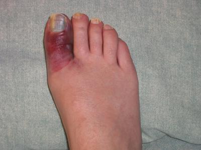 Забій пальця на нозі. Лікування
