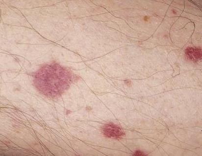 Васкуліт - це поразка стінок кровоносних судин