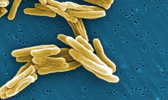 Закрита форма туберкульозу. Як передається і лікується?