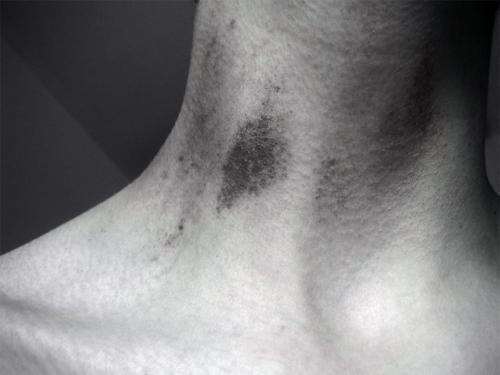 Засос на шию - еротизм у відкритому вигляді