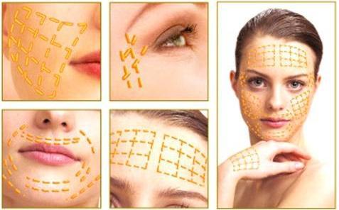 Золоті нитки в косметології - запорука вічної молодості