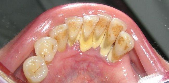 Зубний камінь. Видалення і профілактика